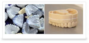 Stone Mouthguard Mold vs 3D Printed Mouthguard Mold